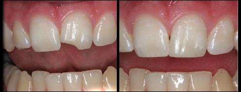 Tooth Bonding Las Vegas Marielaina Perrone DDS
